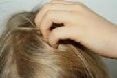 Чувствительная кожа головы